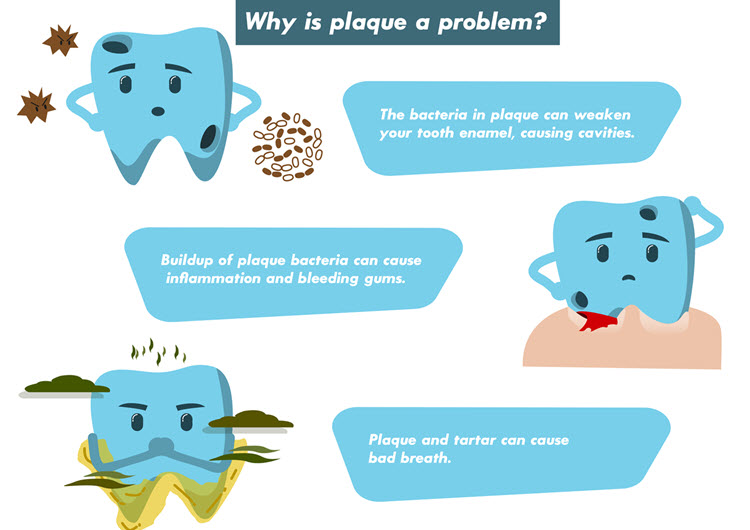 Six Ways to Remove Plaque (#4 Might Surprise You)